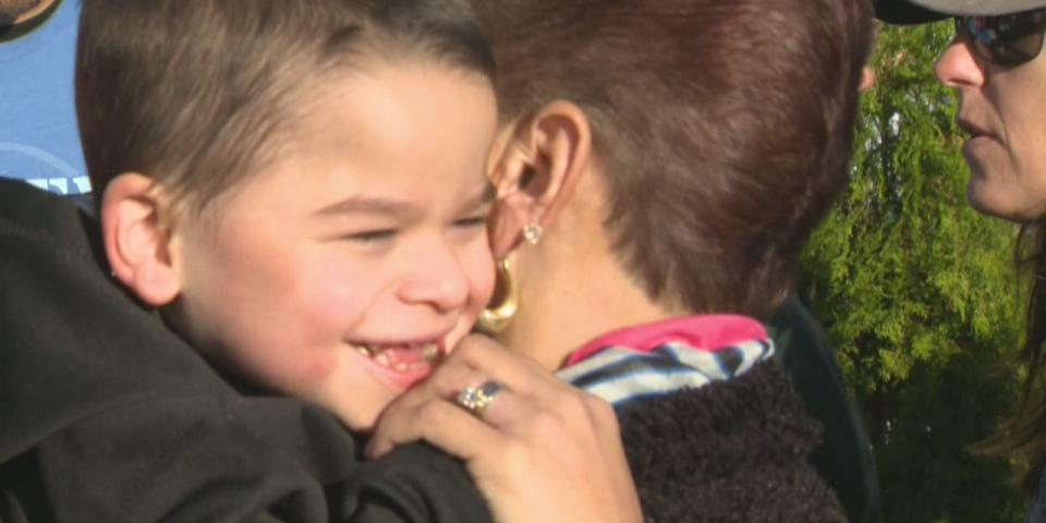 متلازمة انجلمان Angelman Syndrome