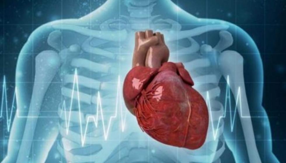 الجمعية اللبنانية لأمراض القلب (LSC) تُطلق برنامج وطني لبناني حول مضادات الصفائح الدمويّة