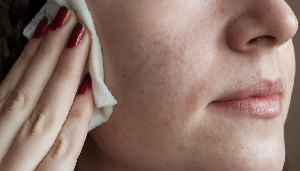 قناع الملفوف ينقّي البشرة الدهنية
